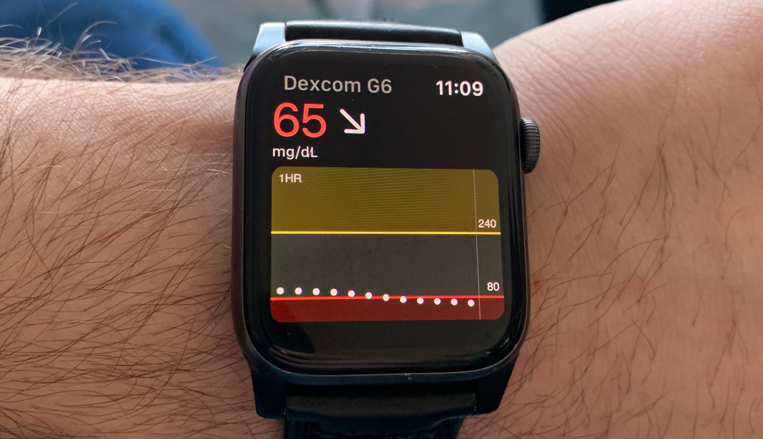 dexcom apple watch