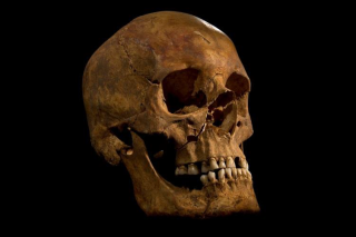Richard III's skull