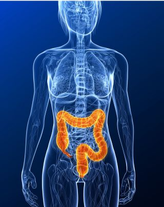 colon, colonoscopy, colon cancer risk