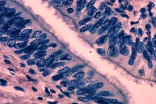 lung cilia
