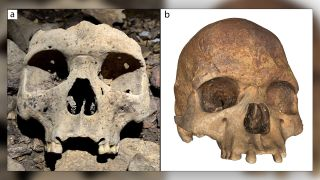 A skull (a) and photogrammetry of a skull (b) showing how the individuals had their upper incisors removed.