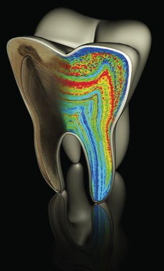 Barium growth in teeth