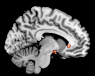 Brain regions associated with guilt and depression.