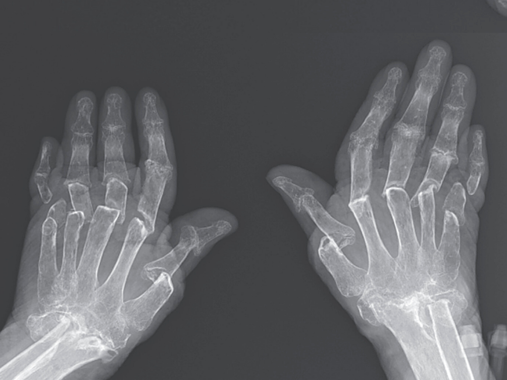 Woman\u0027s Bones Shrank in Rare Case of \u0027Telescoping Fingers