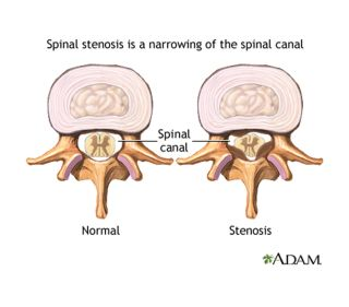 Spinal stenosis, normal vertebra