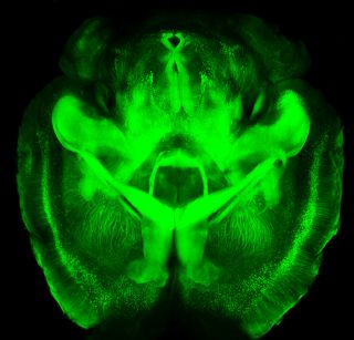 CLARITY mouse brain image