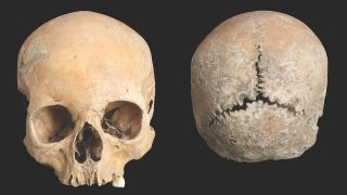 The cleaned cranium of the 15- to 18-year-old teenager, whose face was mutilated in Anglo-Saxon England.