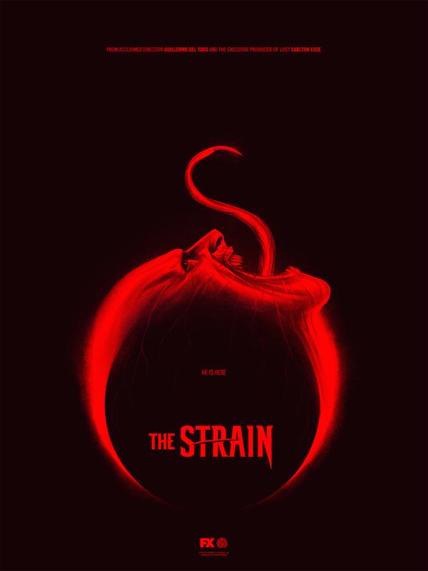 Strain 1