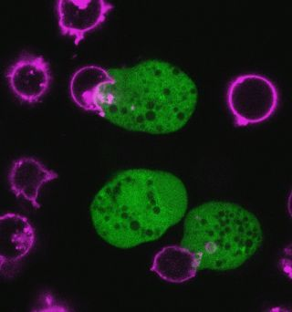 Parasitic Amoeba Eating Human Cells