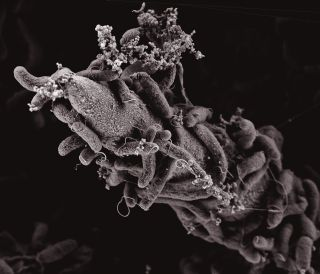 This image shows Vibrio cholerae bacteria attached to a chitin surface.