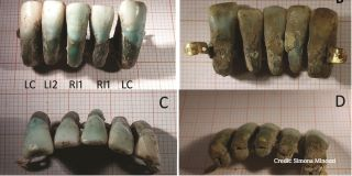 Italian false teeth