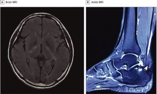 Lumps on a man's Achilles tendon were an early sign of a serious metabolic disease, called cerebrotendinous xanthomatosis, that also affects the brain. Above, MRIs of the patient's brain (A) and ankle (B). The arrowhead in image B points to an enlargement on the patient's Achilles tendon that tapers at the end.