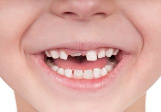 oral health, kids' teeth, teething