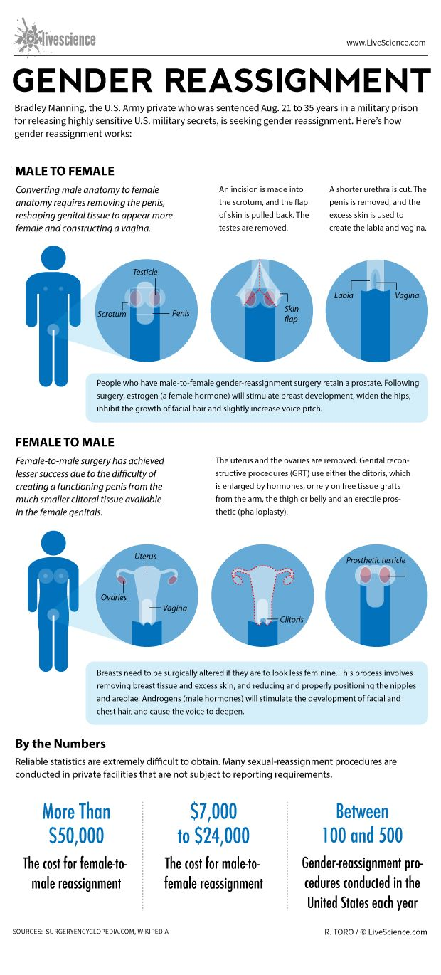 How Gender Reassignment Surgery Works Infographic  Live -2120
