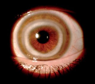 An unusual white ring in the front of a woman's eyeball was the result of a rare condition. Above, an image of the patient's eye showing the ring around the edge of the cornea.