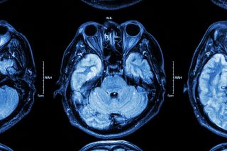Stock photo of MRI scan showing brain and eyes.